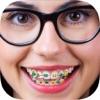الأقواس على الأسنان - ملصقات