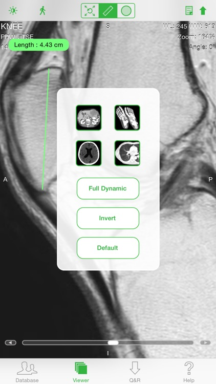 OsiriX HD by Pixmeo SARL