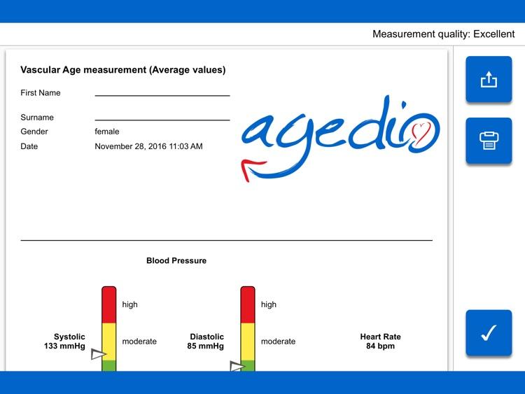 agedio K520 screenshot-4