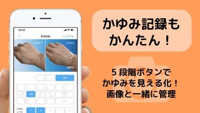 アトピー見える化アプリ-アトピヨのおすすめ画像6