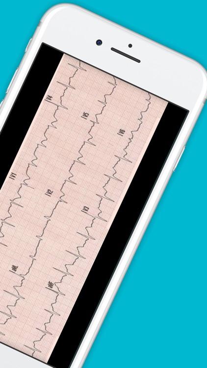 12 Lead ECG Challenge screenshot-6