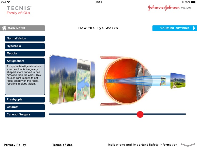 TECNIS® Vision Simulator screenshot-1
