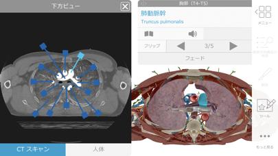 ヒューマン・アナトミー・アトラス2020 ScreenShot4