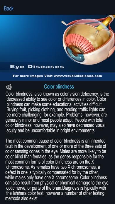My Eye Anatomy screenshot 8