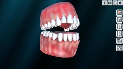 Incredible Human Teeth screenshot 2