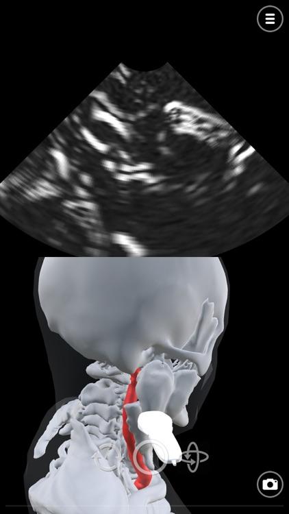 Deepscope Ultrasound Simulator