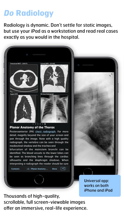 Radiology - Thoracic Imaging