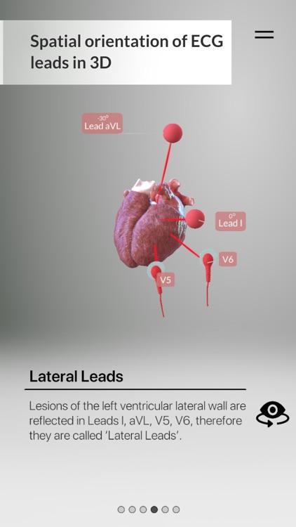 3D ECG Leads screenshot-6