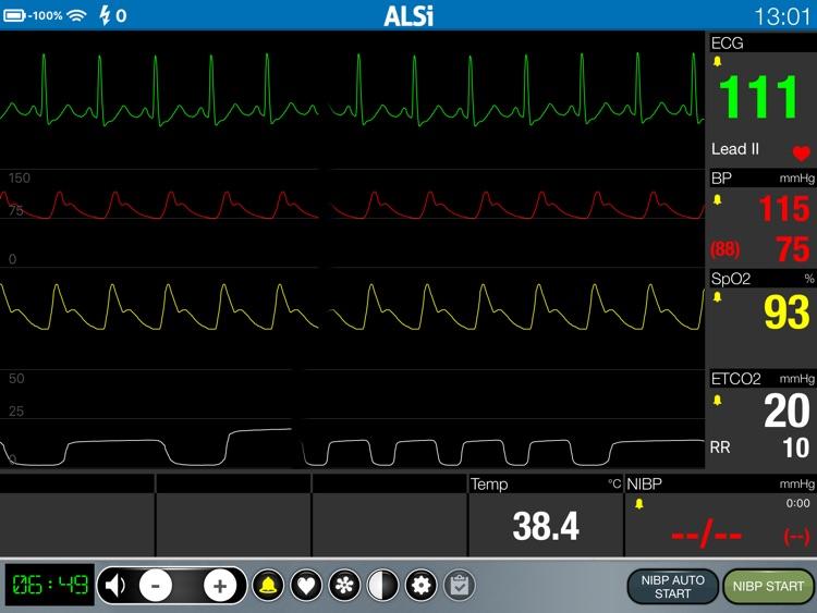 ALSi screenshot-1