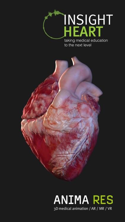 INSIGHT HEART screenshot-5