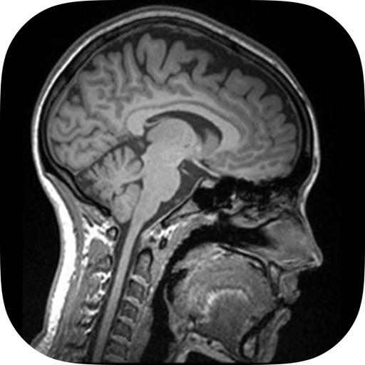 Understanding Medical Scans