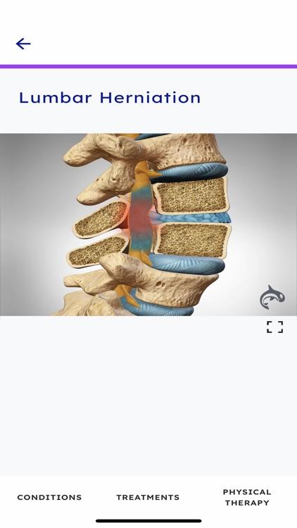Spine Decide