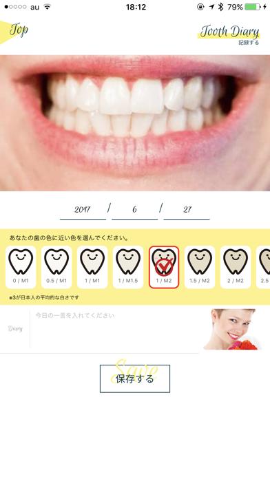 Smile Cosmetique  白い歯日記のおすすめ画像4