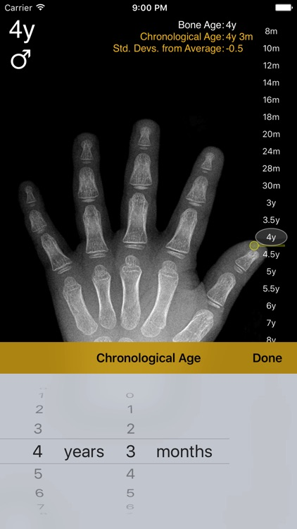 Bone Age
