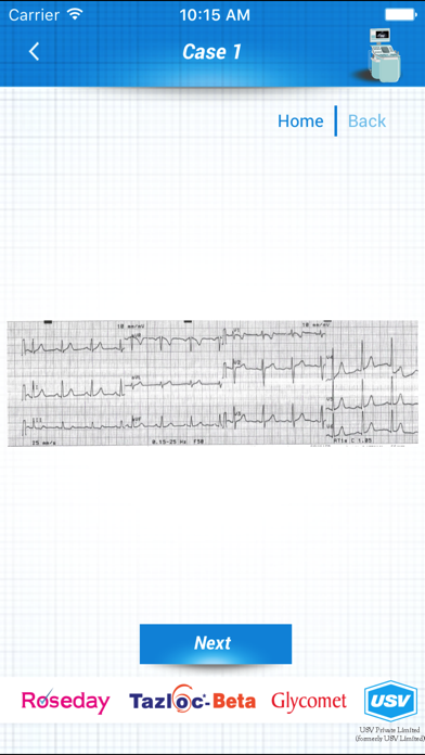 点击获取ECHO and ECG Interpretation