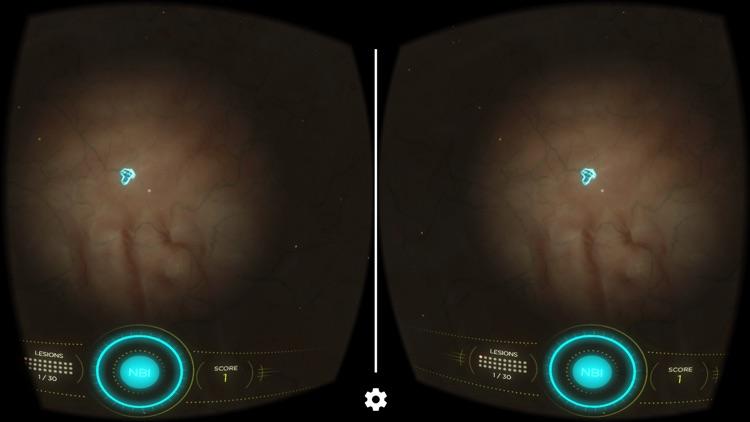 NBI VR by Olympus