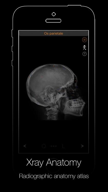 Xray Anatomy screenshot-4