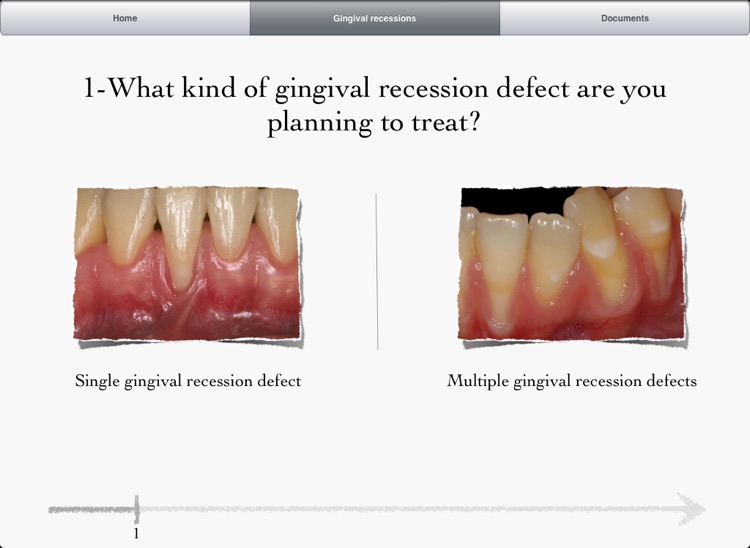 iMuco Gingival recessions