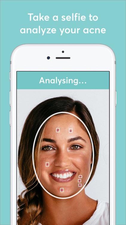 MDacne - Custom Acne Treatment screenshot-0