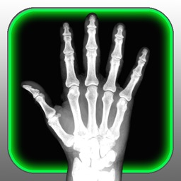 X-Ray Scanner for iPhone