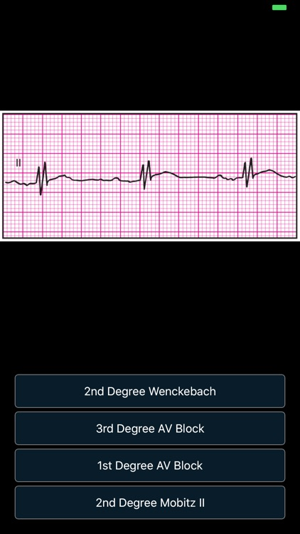 ECG Pro - Cases for CME & EMT screenshot-5