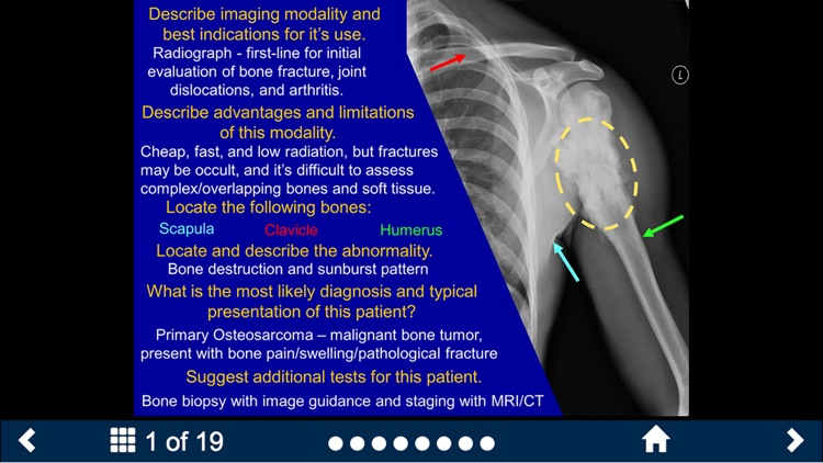 Basic Radiology - Secondlook