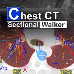 Chest CT Sectional Walker