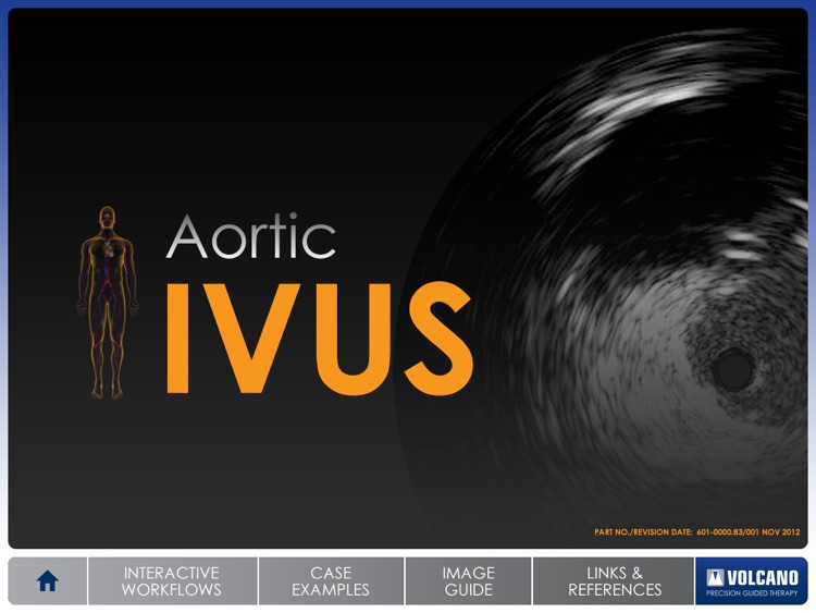 Aortic IVUS screenshot-0