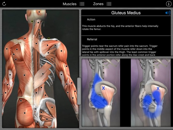 Muscle Trigger Points | App Price Drops