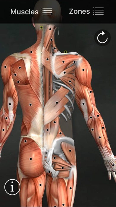 Muscle Trigger Points review screenshots