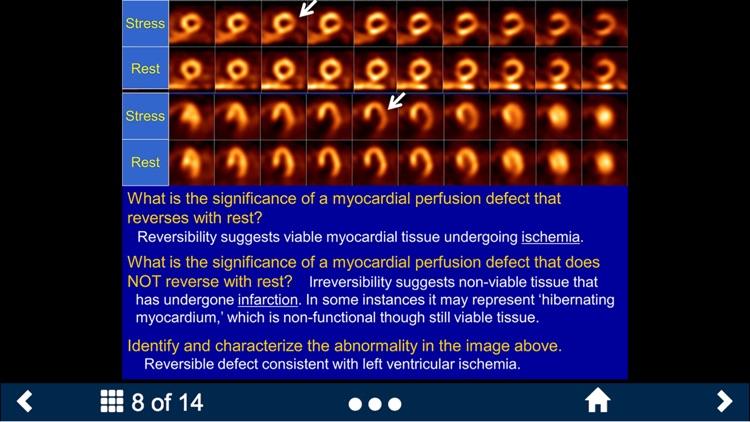 Basic Radiology - Secondlook screenshot-3