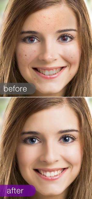 visage lab