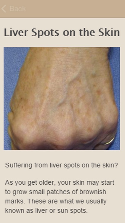 How To Remove Liver Spots