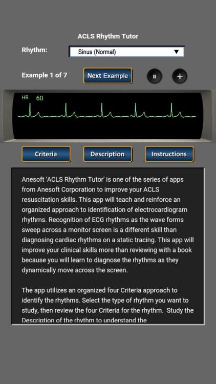 ACLS Rhythm Tutor