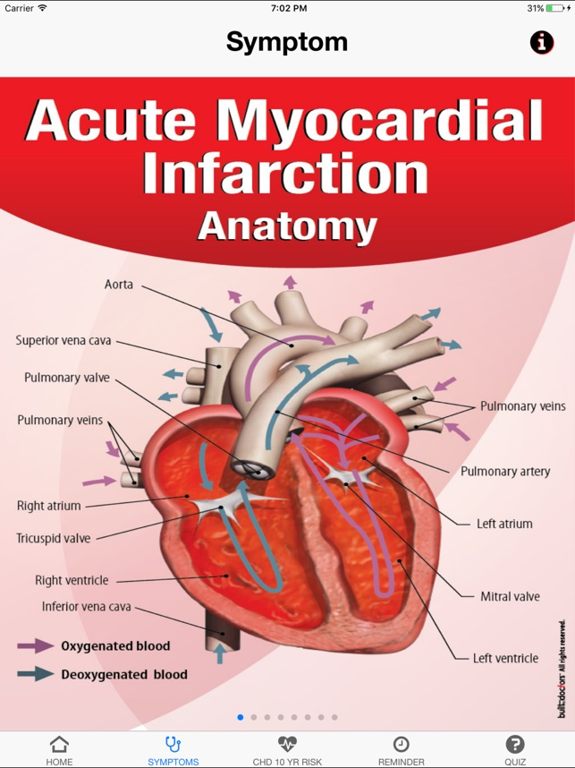 Signs & Symptoms Acute Myocardial Infarction on the App Store