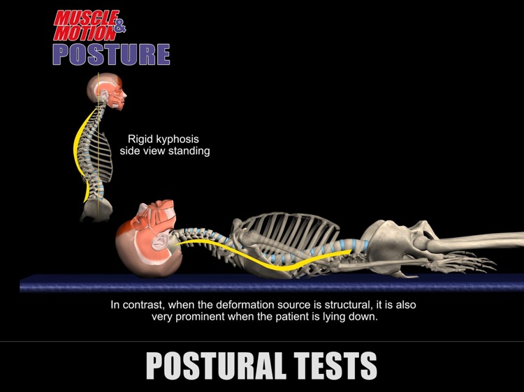 Muscle and Motion - Posture screenshot-4