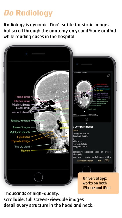 Radiology - Head&Neck Anatomy