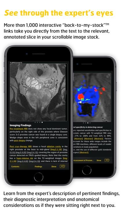 MR Imaging in Prostate Cancer screenshot-3