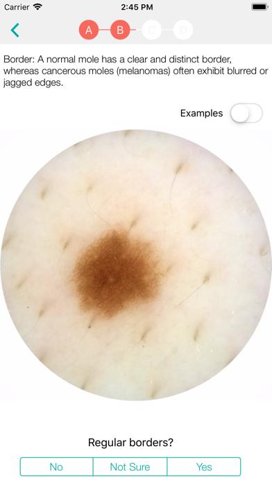 MoleScope™のおすすめ画像3