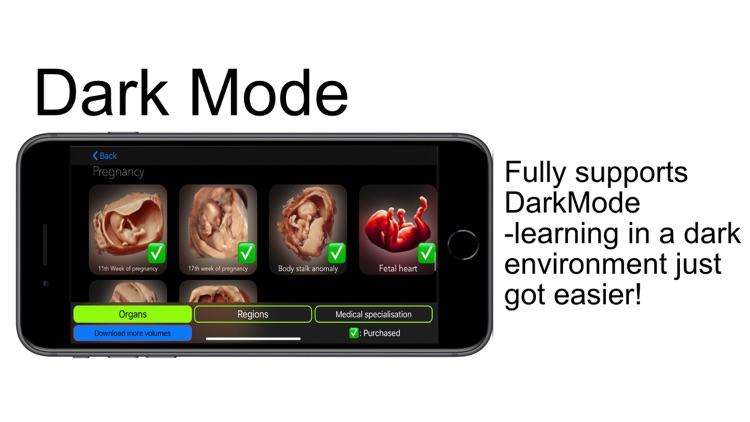 Scanbooster Ultrasound Sim screenshot-7