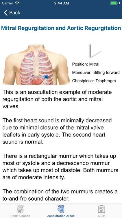 Heart Sounds Auscultation screenshot-5