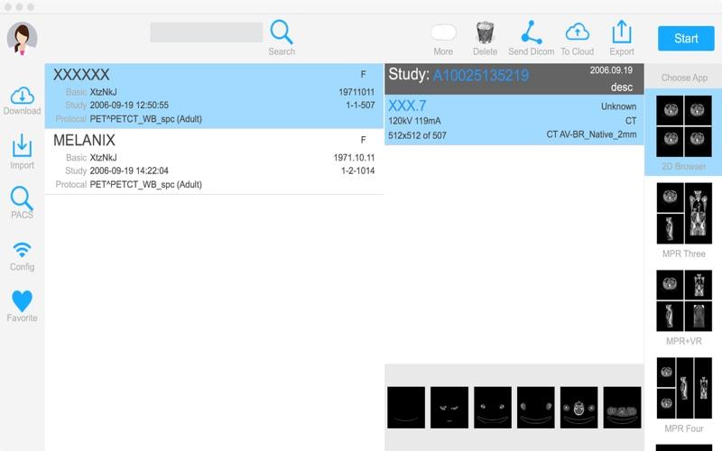 Dicom3D - Easy and Powerful скриншот программы 7