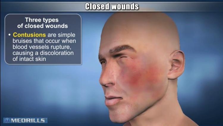 Managing Soft-Tissue Trauma screenshot-3