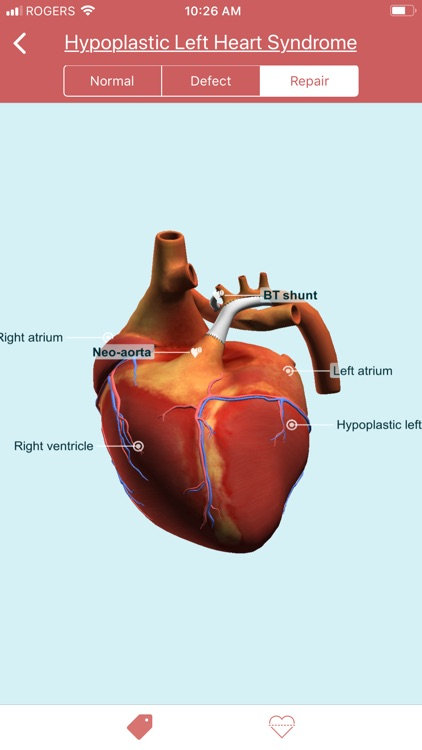 eMurmur Heartpedia screenshot-9