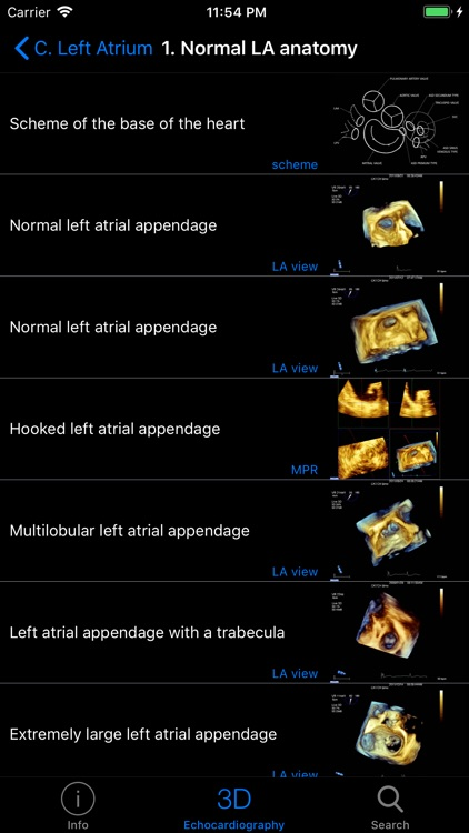 CARDIO3® 3D Echocardiography