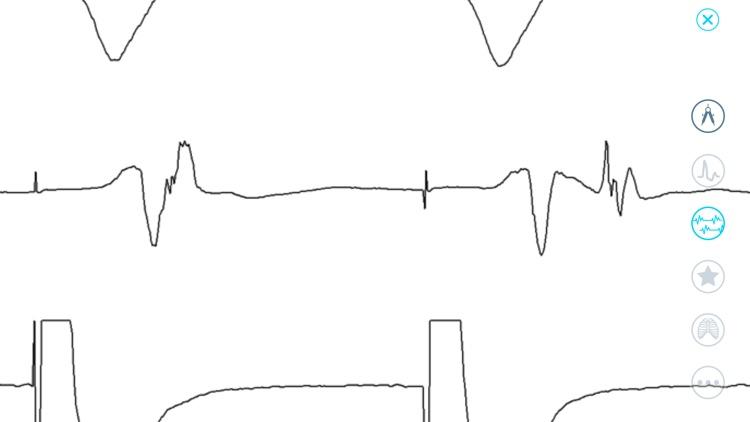 Cardiac Arrhythmia Challenge screenshot-7