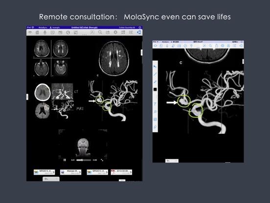 MolaSync - Cloud note Screenshots