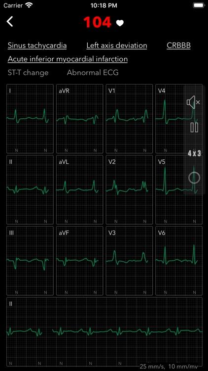 ECG Pro screenshot-4