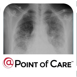 Idiopathic Pulmonary Fibrosis @Point of Care™