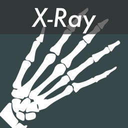 X-Ray Photo Effects